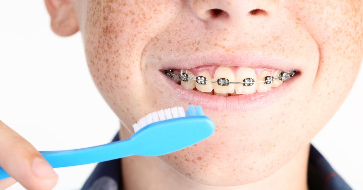 Come lavare i denti con l'apparecchio